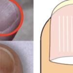 爪を見ればあなたの健康状態が分かる⇒この症状があれば病気のサイン12選!