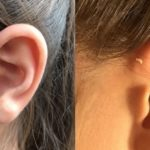 耳瘻孔の本当の意味…100人に1人が持つ耳の付け根の穴の意味が話題に…