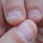 爪を噛む人の性格の共通点…ちょっと危険な特徴が実験で明らかに…