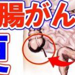 大腸がんの便の異変…毎年6万人の日本人が発症する身近な病のサインとは?