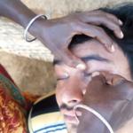 インドの眼球クリーニング…針金を使いゴロゴロ異物がとれまくる衝撃の動画が話題に…