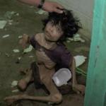 育児放棄で骨と皮だけになった15歳少年…児童虐待の悲惨さに想像を絶する…