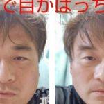 大阪の人気整体師が教える小顔セルフエステが凄い…わずか10分でこの効果…
